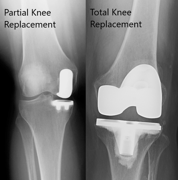 partial vs total knee replacement