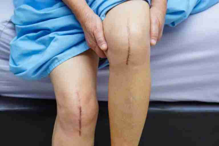 https://www.jointreplacementhawaii.com/same-day-total-knee-replacement/