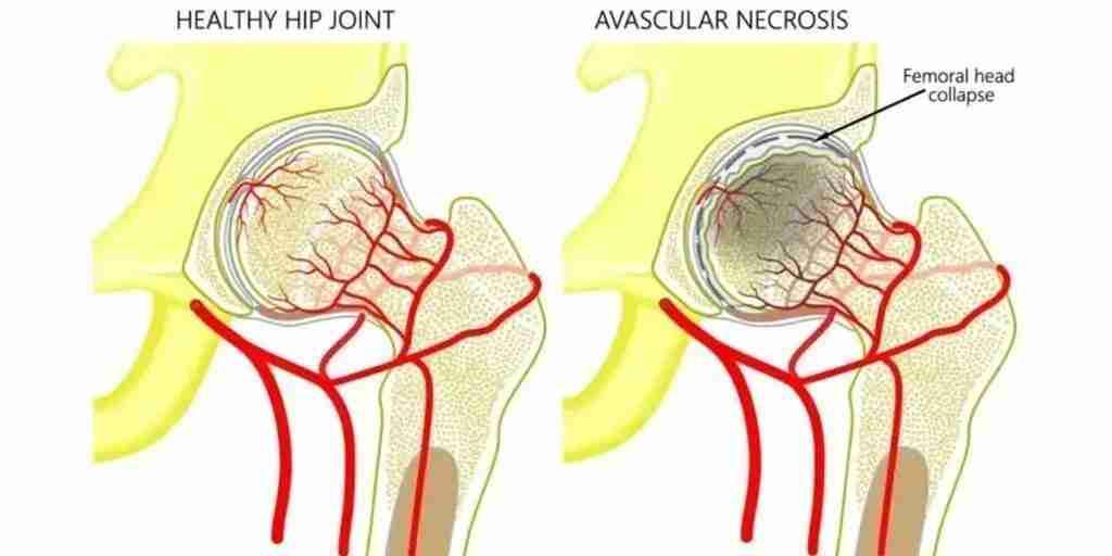 avascular necrosis pathophysiology