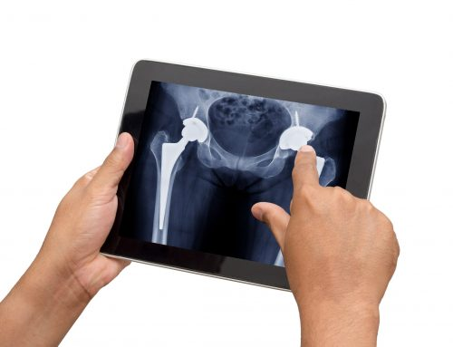 First Year of Recovery after Hip Replacement – Tips for a Speedy Recovery