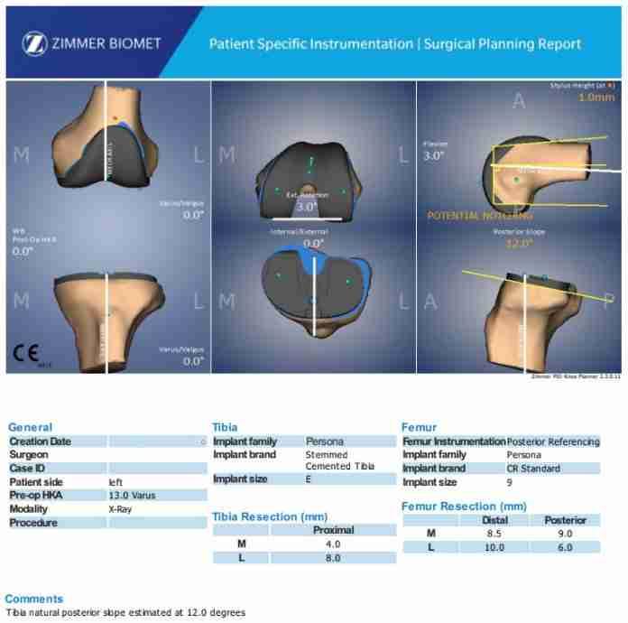 Preop Plan for Rosa Total Knee Arthroplasty